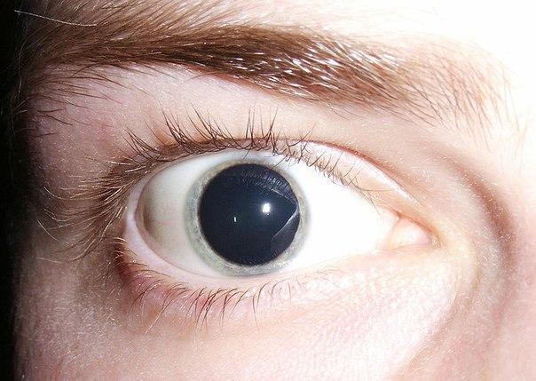 Как выглядит амфетаминовый наркоман